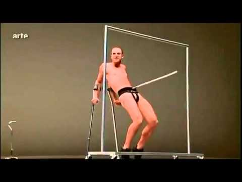 """When you Google images for """"person with crutches,"""" this is one that shows up. Enjoy."""